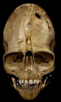 Craneos Extraterrestres: La Evidencia ET Ocultada Andover-weird-skull1