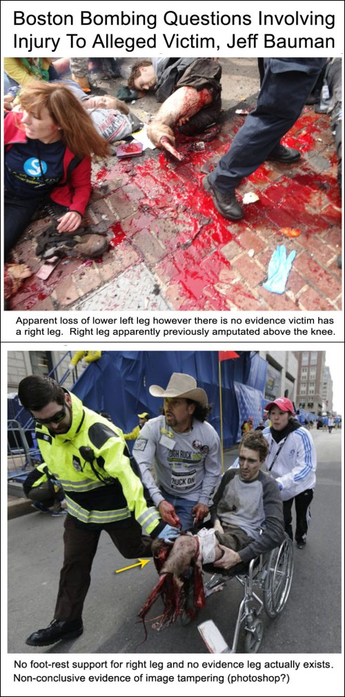 boston-bombing-questions-involving-victim-jeff-bauman-vertical1
