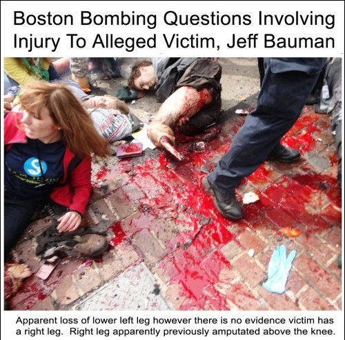 boston-bombing-questions-involving-victim-jeff-bauman-vertical1