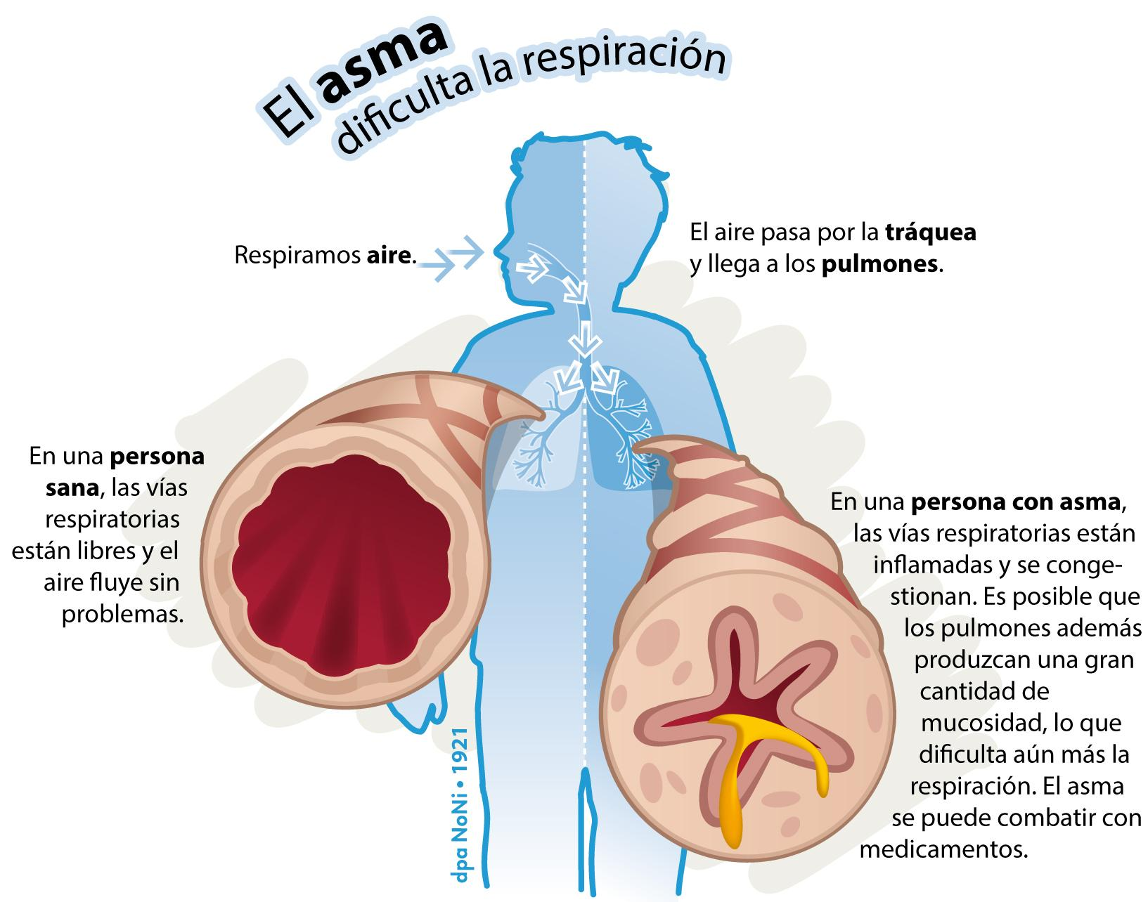 asma61